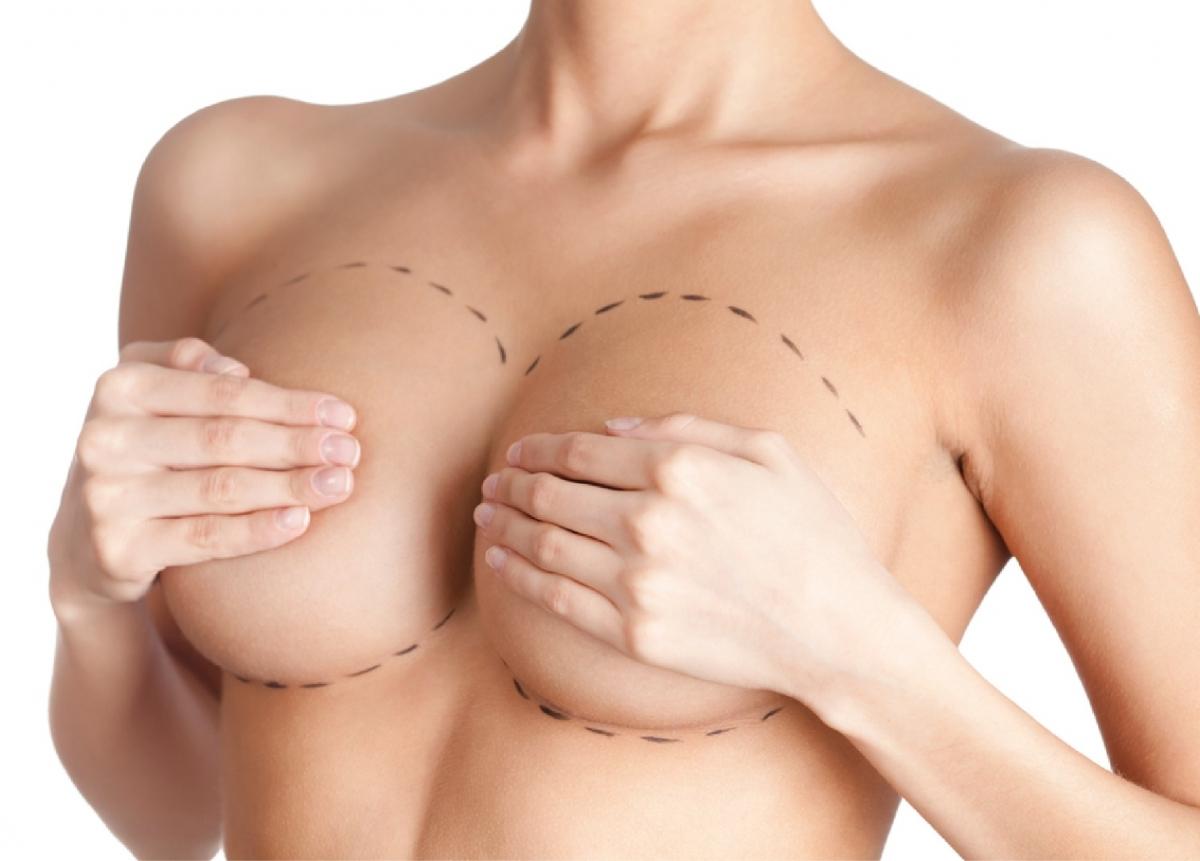 Quais os tipos de incisões utilizadas na mamoplastia de aumento?