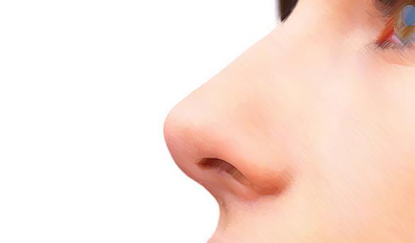 O tipo de nariz interfere na cirurgia de rinoplastia?