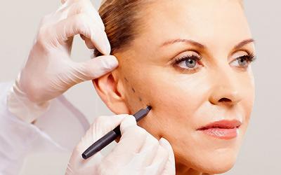 Lipoenxertia facial – como funciona o preenchimento com gordura?