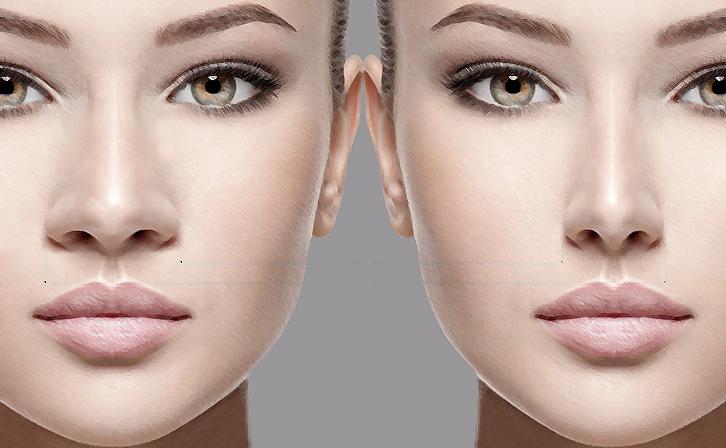 Rinoplastia para nariz negroide: conheça um pouco mais sobre essa cirurgia