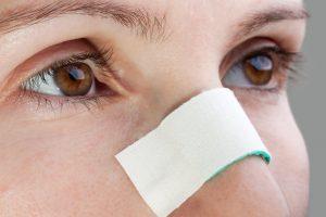 Como funciona a prevenção de fibrose após a Rinoplastia
