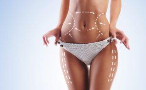 O que é preenchimento com gordura?